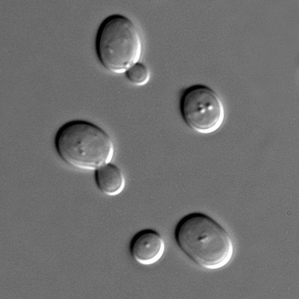 S_cerevisiae_under_DIC_microscopy